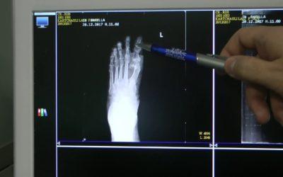 Correzione dell'alluce valgo: controllo post operatorio